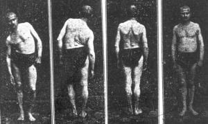Das Bild zeigt: Quartett von hysterische Bewegungsstörungen: der kranke und der geheilte Patient (1918)