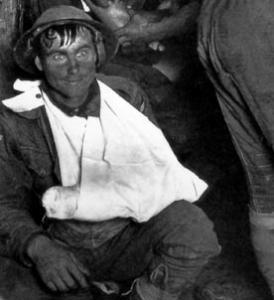 """Ausschnitt aus einem Foto, das auf einem australischen Verbandsplatz in der Nähe von Ypern 1917 aufgenommen wurde. Der Soldat hat den Blick, der als """"Two Thousand Yard Stare"""" bezeichnet wird. <http://commons.wikimedia.org/wiki/File:Shellshock2.jpg?uselang=de>"""